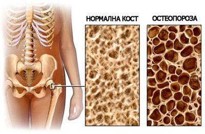 Остеопороза лечение