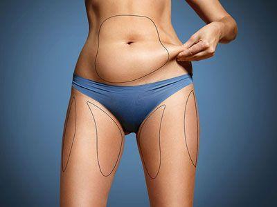 Как да се справим с отпусната кожа след отслабване