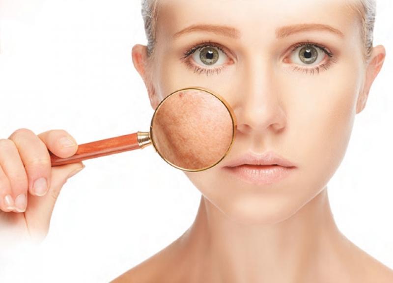 Полезна информация - Избелване на кожата с глутатион