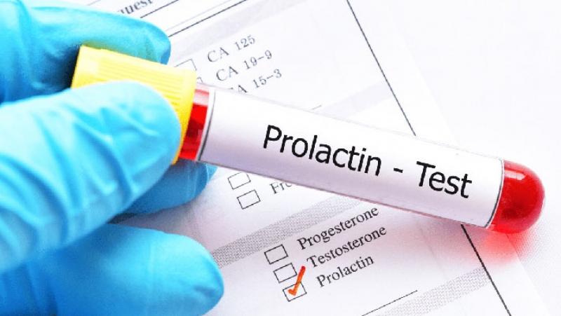 Висок пролактин